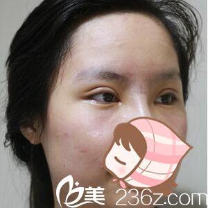 上海原辰医疗美容医院朴原辰全切双眼皮真人案例图2