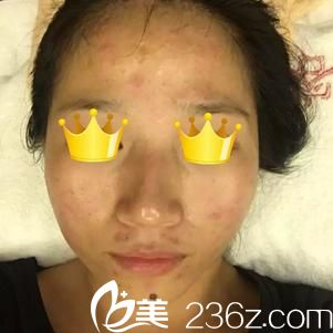 武汉臻魅整形美容医院成瑾浩术前照片1