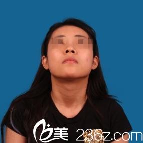 太原青松整形美容门诊部冯光术前照片1
