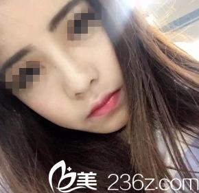 太原青松整形美容门诊部冯光术后照片1