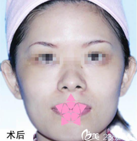 这次让南平时光刘庆辉医生给我做过激光祛黄褐斑后,感觉还挺有效果的