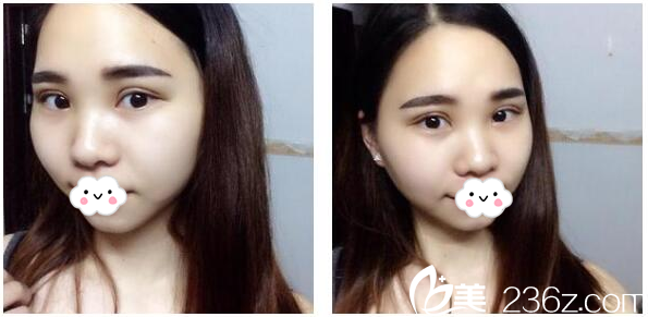 我去惠州瑞芙臣整形医院找刘丹虹医生做了切开双眼皮手术