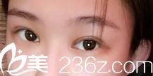 6毫米韩式双眼皮术后两月照,看我在北京圣嘉新医院做的好么