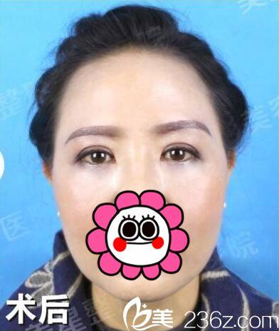 宜昌华美美星内部员工变美案例 祛眼袋+提眉四十多岁阿姨年轻到被人叫姐姐