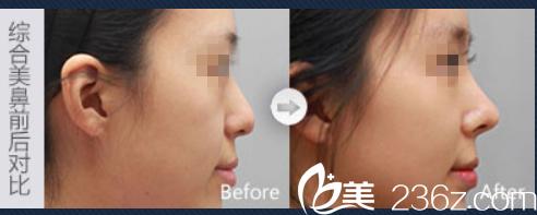 蚌埠韩丽隆鼻怎么样?看隆鼻案例对比图