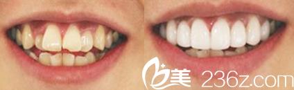 蚌埠韩丽牙科怎么样?看牙齿矫正美白效果展示