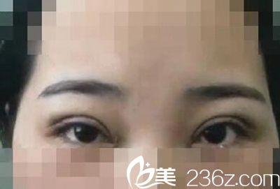 平顶山艺美定制设计的双眼皮 大家看看做的自然不?