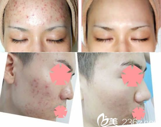 宁德东韩祛痘案例对比图