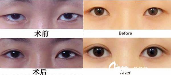 双眼皮和开眼角前后对比效果