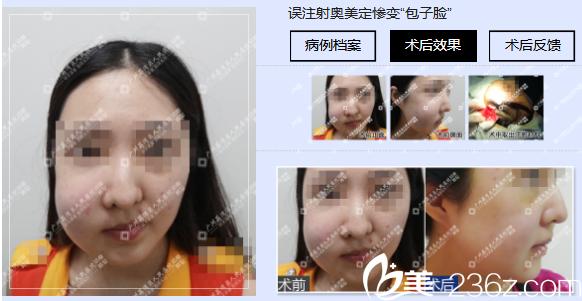 广州荔湾区人民医院整形科面部奥美定取出案例