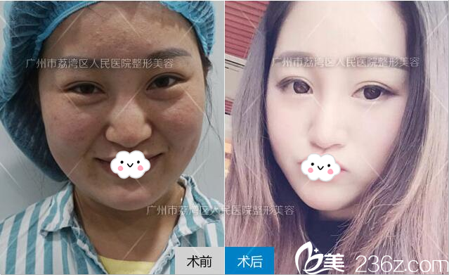 广州荔湾区人民医院整形科鼻部奥美定取出+隆鼻案例