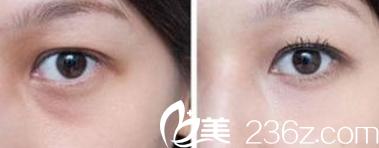 北京幸福医疗美容医院案例