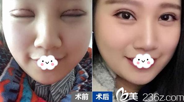 广州荔湾区人民医院整形科双眼皮失败修复案例