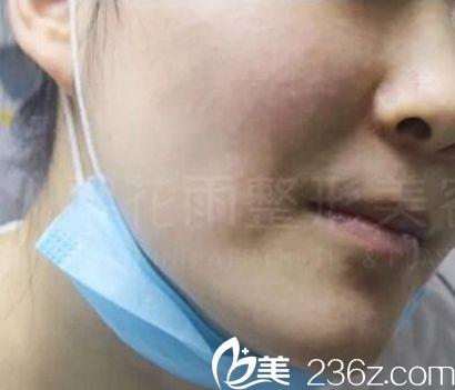 在郑州梨花雨做了彩光嫩肤去痤疮和痘印后 肌肤回归17岁状态