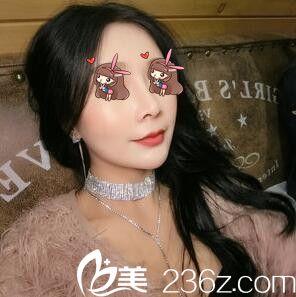 上海美仑李元山为我做的鼻综合+面部自体脂肪填充,丑小鸭的蜕变之路