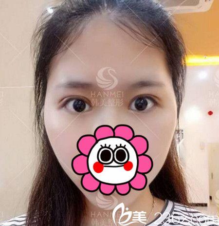 快看看我在北海韩美做双眼皮+开眼角手术后7天的效果好不好