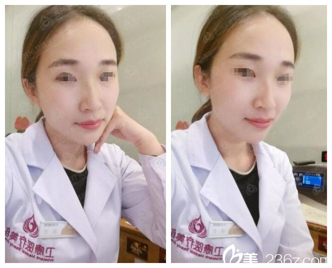 苏州卫康医疗美容医院林广兴术后照片1