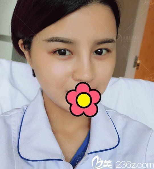 请看宁波米阳整形医院护士员工双眼皮+鼻综合一起做的惊艳蜕变