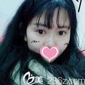 大家看看我找南昌大学附二医院美容科易艳阳做双眼皮后效果怎么样?