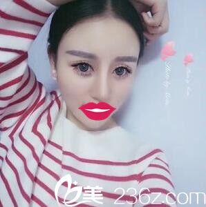 上海华美谢卫国为我做的耳软骨隆鼻,美丽大变身