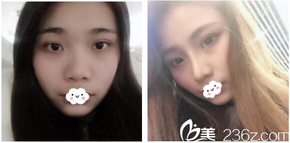 广州美莱医疗美容医院刘豪隆鼻案例