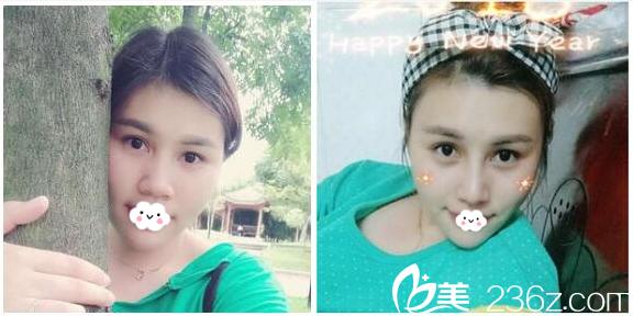 广州美莱刘豪教授鼻综合隆鼻案例对比图