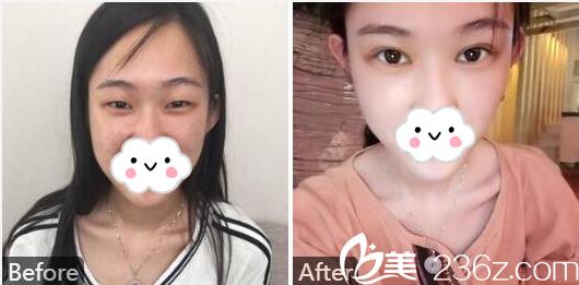 广州美莱刘豪教授做的切开双眼皮案例