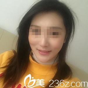真人案例:武汉美都FUE无痕植发后摆脱秃顶变身少女