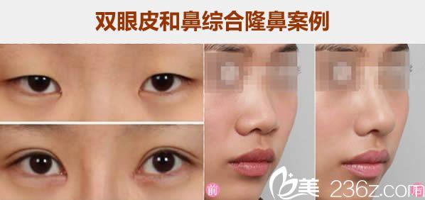 厦门思明薇格双眼皮和鼻综合隆鼻案例