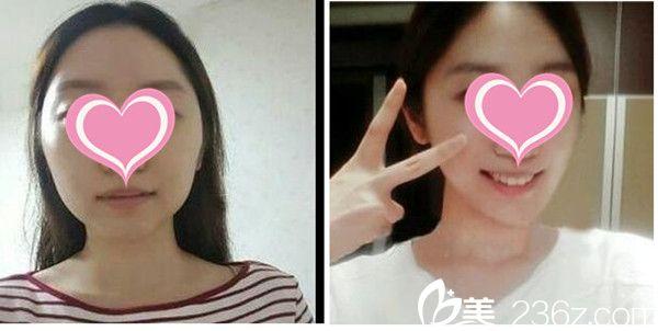 南昌大学医疗美容医院瘦脸案例