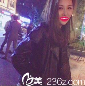 上海爱丽姿刘安堂为我做的鼻综合,真心惊艳