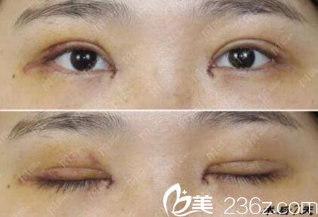 在郑州美艺割双眼皮4个月反馈 孔宇院长技术真是赞