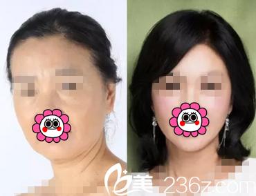 面部除皱效果前后对比