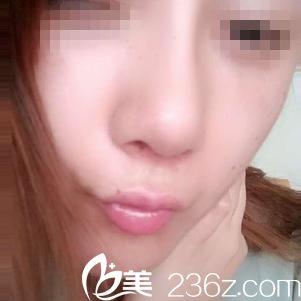 都在问武汉中爱付荣峰怎么样 看了他给我做的鼻综合效果就知道
