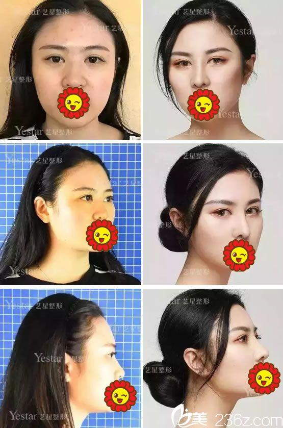 为了改善大鼻头塌鼻子 选择宁波艺星郭文煜主任医生做BSK宫廷综合隆鼻手术