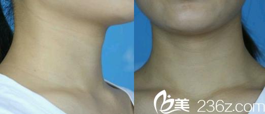 没有想到让合肥华美王荣堂做了黄金微针去颈纹  刚做完就有效果