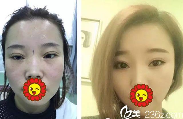 舟山任曙敏白玉兰双眼皮修复和隆鼻案例