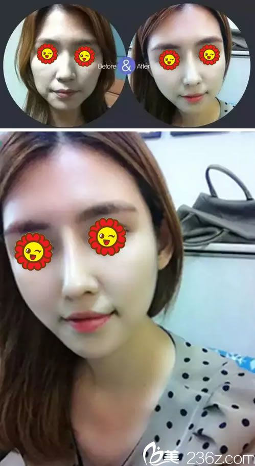 2个月前去舟山任曙敏白玉兰医疗整形机构做了面部线雕提升术 效果跟换脸一样
