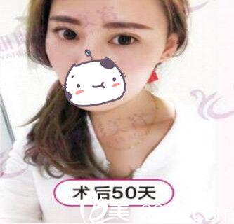 选择郑州妍琳割双眼皮 完全是奔着慎攻关院长去的