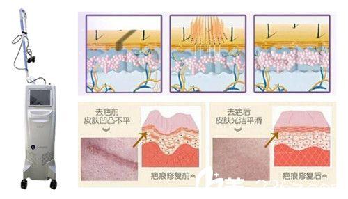 激光祛疤原理