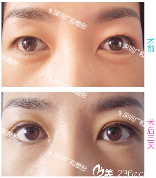 深圳广和整形医院双眼皮案例术后3天对比图