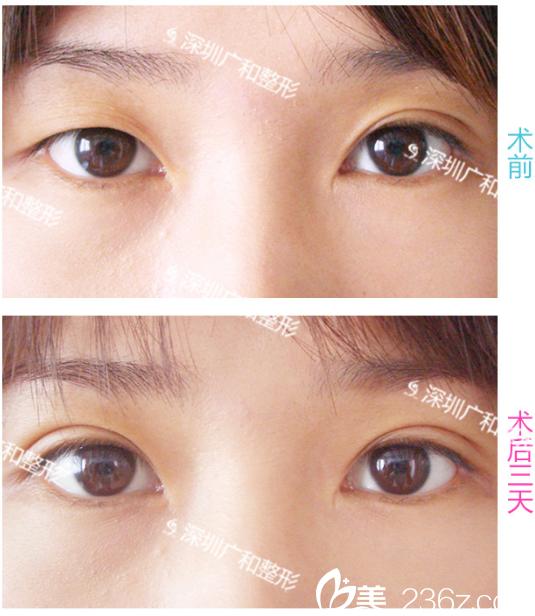 深圳广和整形医院双眼皮改善一单一双案例