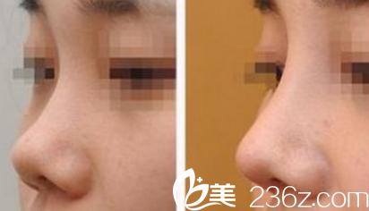 在蚌埠国色整形美容医院做鼻子整形案例