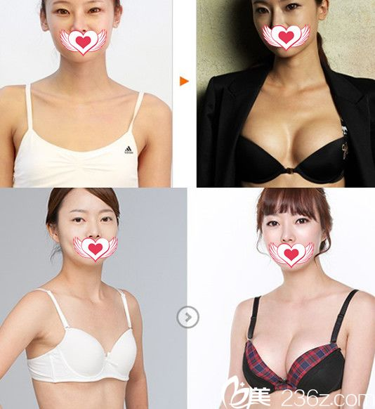 找蚌埠国色整形美容医院做假体隆胸案例效果图