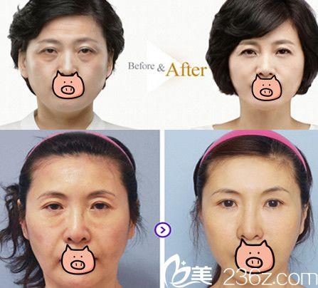 面部线雕蚌埠哪家医院好?看蚌埠国色整形美容医院面部线雕案例效果展示
