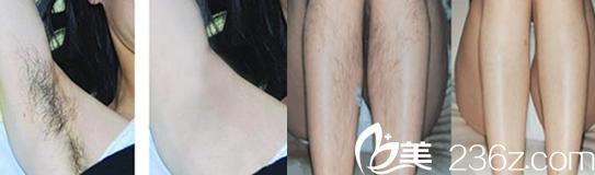 属于蚌埠国色整形美容医院的腋下脱毛+小腿脱毛案例