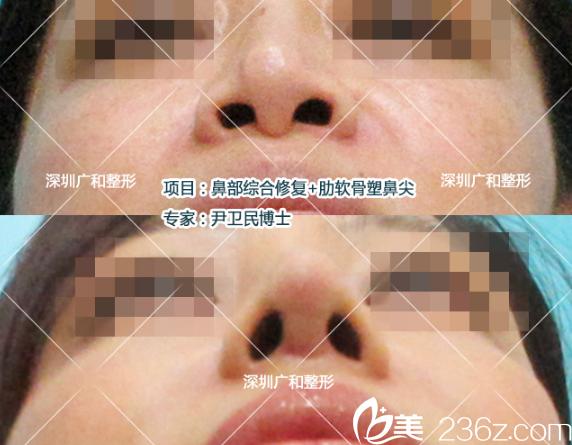 公开隆鼻失败4次找深圳广和尹卫民做鼻子修复和自体肋软骨塑鼻尖的经历