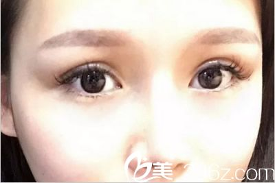 给朋友说我在兰州润妍让逯岩医生做假体隆鼻 全切双眼皮一年了 可他们图片