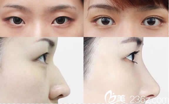 聊城韩美双眼皮和鼻综合隆鼻案例图