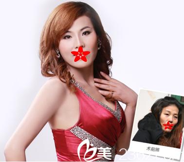 在亳州东方美莱坞做纯韩童颜术+DGS面部年轻化+纯韩分层定向吸脂真人案例效果展示